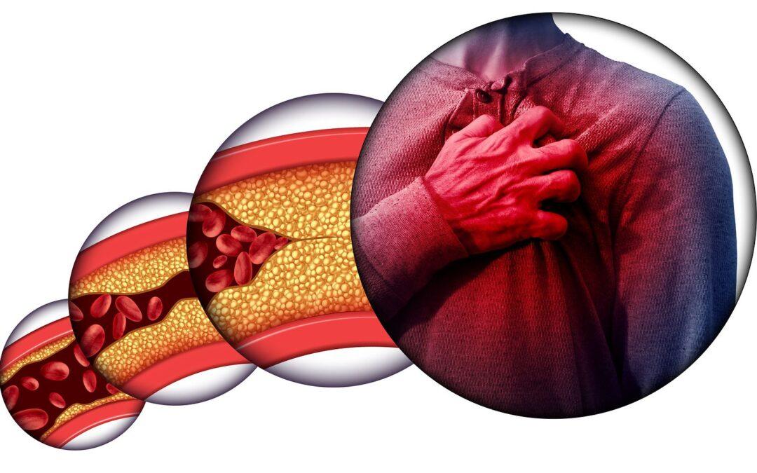 Recomendaciones dietéticas para pacientes con dislipemia